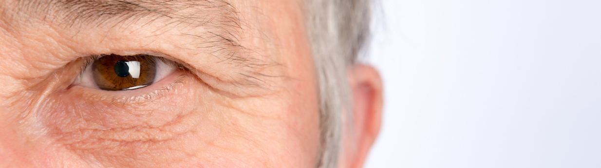Revision Eyelid Surgery London