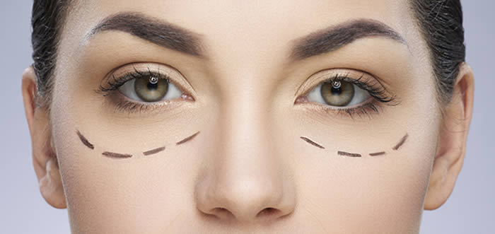 Cosmetic - eyelid lift surgery london