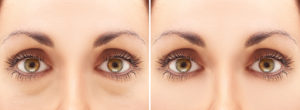 Blepharoplasty eyelid surgery procedure london