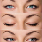 eyelid surgery harley street london